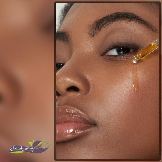 بادام، تغذیه کننده ای قوی برای پوست
